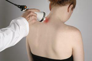 deep tissue laser therapy Glen Mills PA | chiropractor Wilmington DE